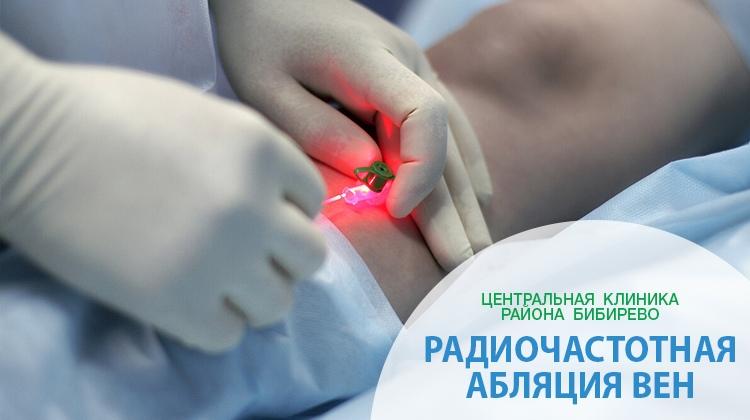 Радиочастотная абляция вен в Отрадном, Алтуфьево, Медведково Бибирево