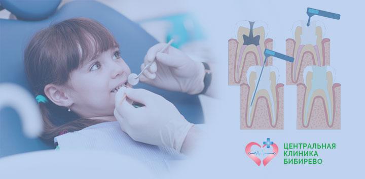Лечение пульпита у детей Бибирево