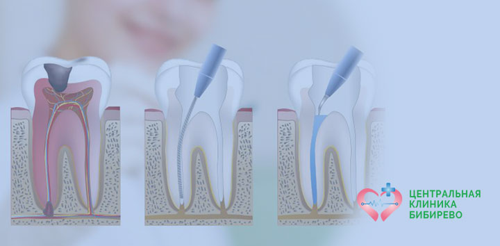 Лечение каналов зуба Бибирево, Алтуфьево, Бабушкинская