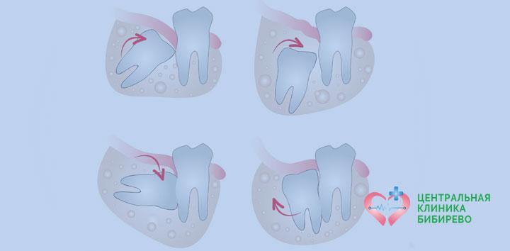 Удаление 4 зубов мудрости Бибирево