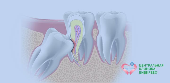 Удаление ретинированного зуба Бибирево, Алтуфьево, Бабушкинская